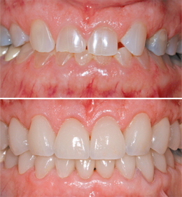 teeth-crowns